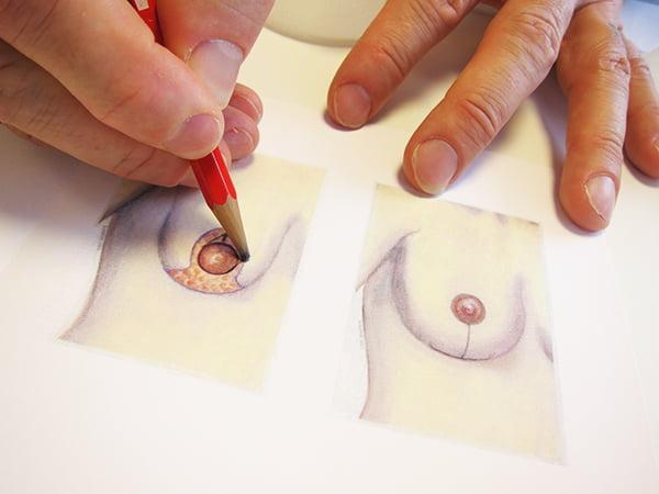 Brustverkleinerung: Skizze der Brustwarzenverschiebung (Breast Atelier Zürich)