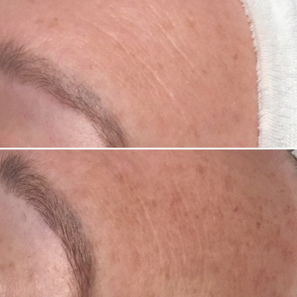 OxyGeneo Gesichtsbehandlung: Der Hey Pretty-Test – links vorher, rechts nach 12 Wochen und 4 Behandlungen bei Elu Cosmetics Zürich