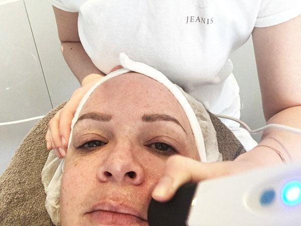 Was passiert bei der OxyGeneo Gesichtsbehandlung? Hey Pretty testet bei Elu Cosmetics Zürich (Mikrodermabrasion, Step 1)